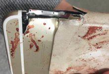 Γυναίκα γλίτωσε τον θάνατο στο Μάντσεστερ λόγω του… iPhone! (photos)
