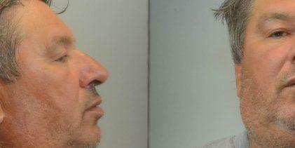 Αυτός είναι ο 62χρονος παιδόφιλος που ασέλγησε σε 11χρονη με δέλεαρ… σύκα